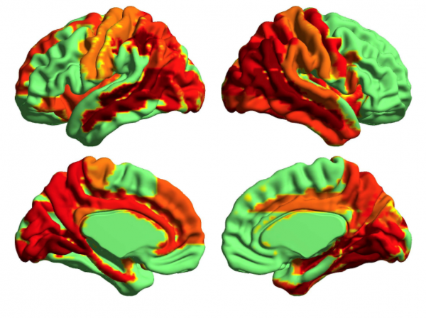Image created using brain imaging technology, showing changes in neural signal diversity while under the influence of LSD